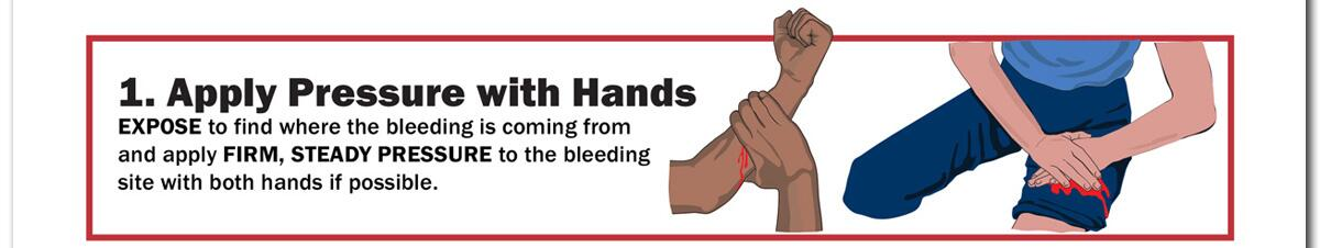 1. Apply Pressure with Hands. EXPOSE to find where the bleeding is coming from and apply FIRM, STEADY PRESSURE to the bleeding site with both hands if possible.