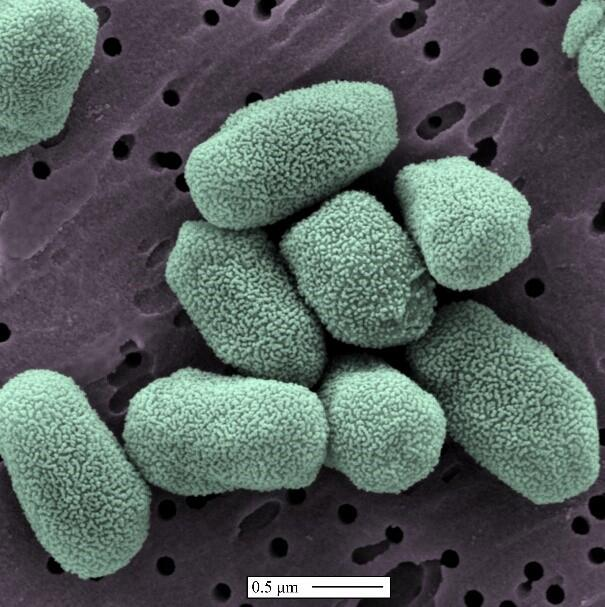 A scanning electron microscope picture of anthrax spores. Simulated benign anthrax spores are often used in USI tests as they are some of the toughest organisms to get rid of. Image by S&T National Biodefence Analysis and Countermeasures Center.